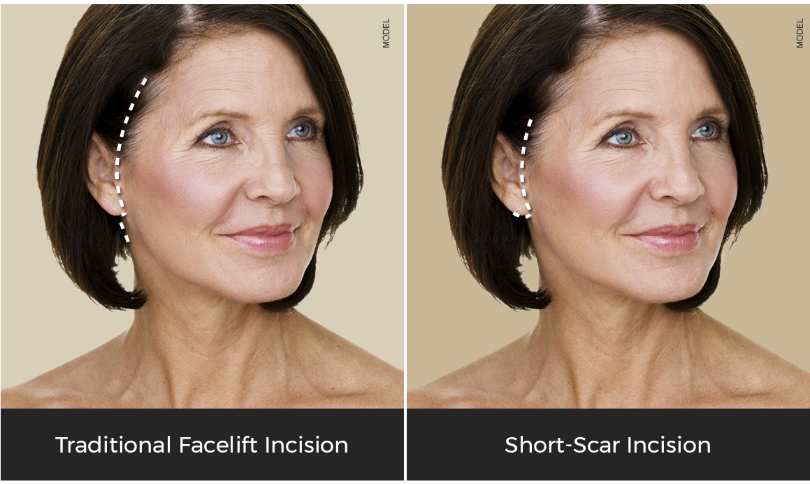 facelift incision graphic