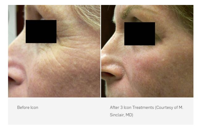 Before and After 3 Icon treatments (Courtesy of M. Sinclair, MD)